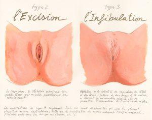 excision-schema-2